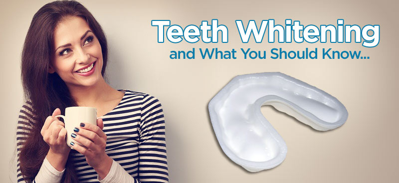 Teeth Whitening and what you should know…