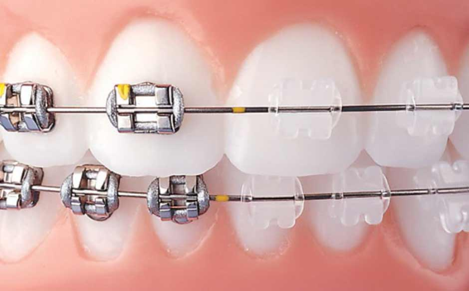 Clear Braces Vs. Metal Braces
