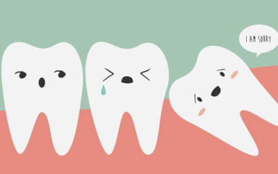 When is it time to pull your Wisdom Teeth?