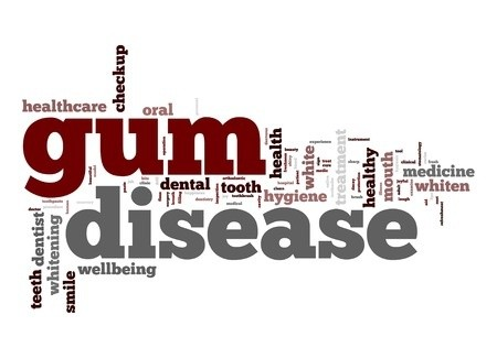 What is gum disease and how to prevent it?