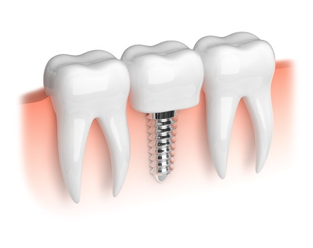 Information about dental implants