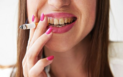 Mission Viejo Dentists recommends to stop smoking