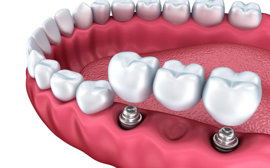 Mission Viejo Dentist Recommends a Crown or Bridge
