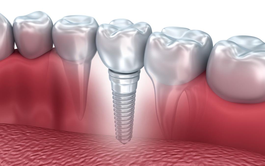 Mission Viejo Dentist Uses High Quality Dental Implants