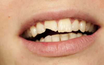 Chipped Tooth or Cracked Crown?