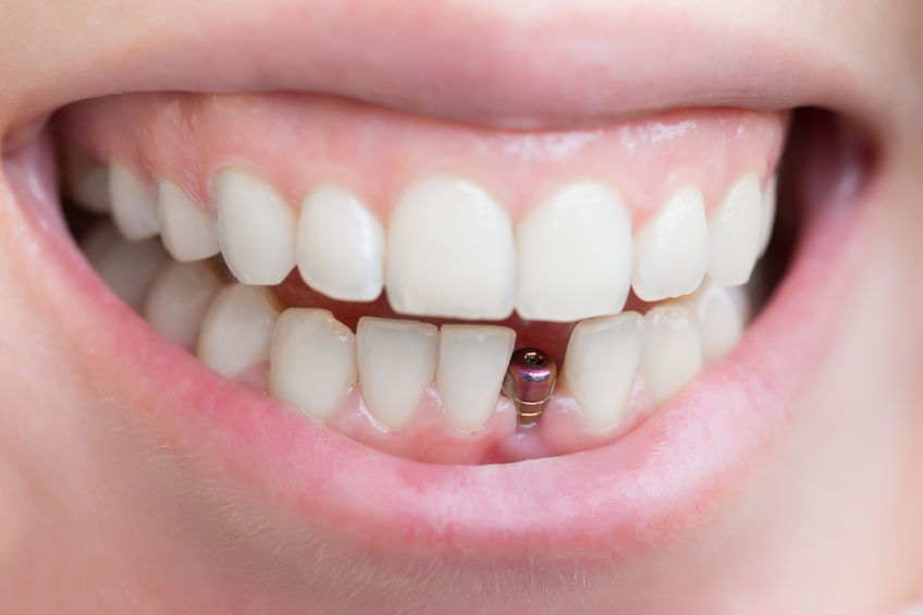 Do you have a Loose Tooth or Loose Crown?